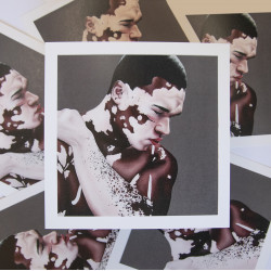 """Vitiligo""  Print (Edicion especial)"